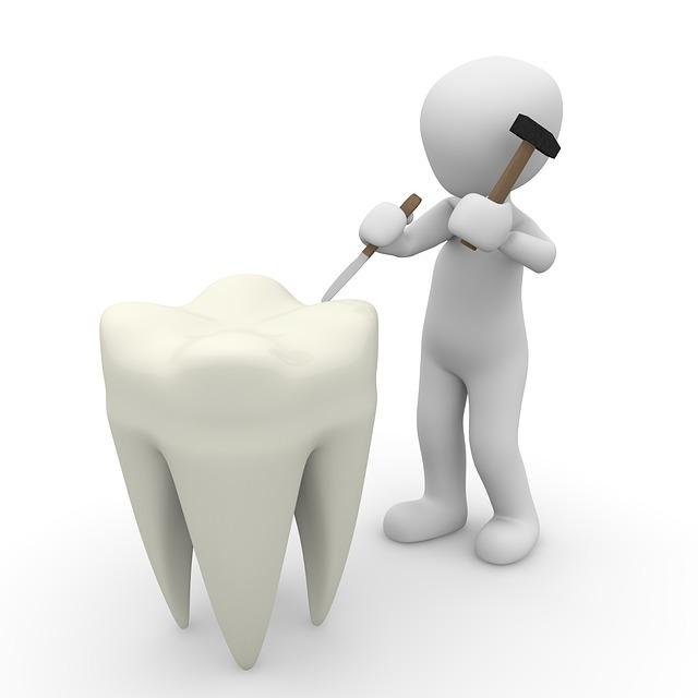 limpiar dientes Trucos para tener unos dientes muy blancos