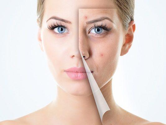 como evitar el acne facial