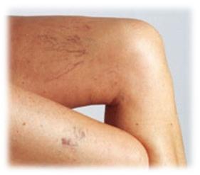 varices piernas Varices. Consejos para reducir las varices en las piernas.