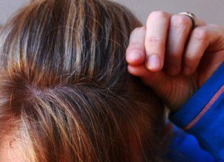 alopecia-femenina-caida-cabello-mujer