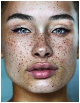 eliminar manchas cara Manchas y marcas corporales que querrás eliminar de ti para siempre