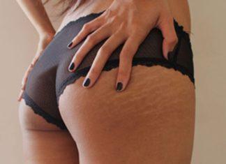 eliminar marcas corporales