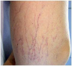 varices eliminar Manchas y marcas corporales que querrás eliminar de ti para siempre