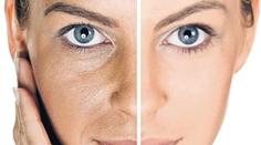 piel seca tipos Descubre cuál es tu tipo de piel