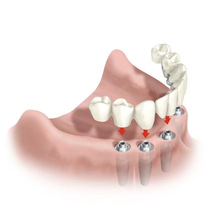 implante3 Recomendaciones para la protección de los implantes dentales