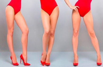 tratamientos piernas Tratamientos para las piernas