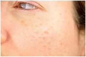 disimular manchas piel cara Cómo camuflar las imperfecciones de la piel de la cara