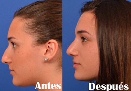 que hacer despues de una rinoplastia Rinoplastia | Consejos para proteger tu nariz después de una operación de rinoplastia