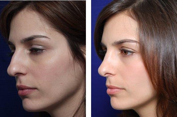 rinoplastia Rinoplastia | Consejos para proteger tu nariz después de una operación de rinoplastia