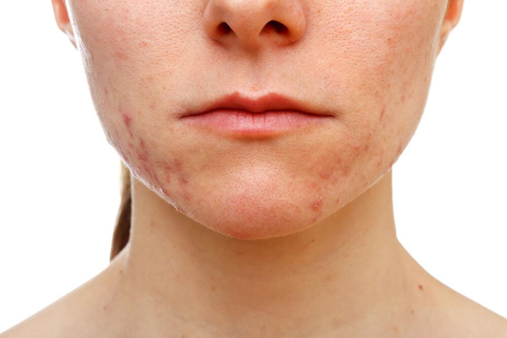 Cicatrices cara Consejos y remedios naturales para disimular cicatrices