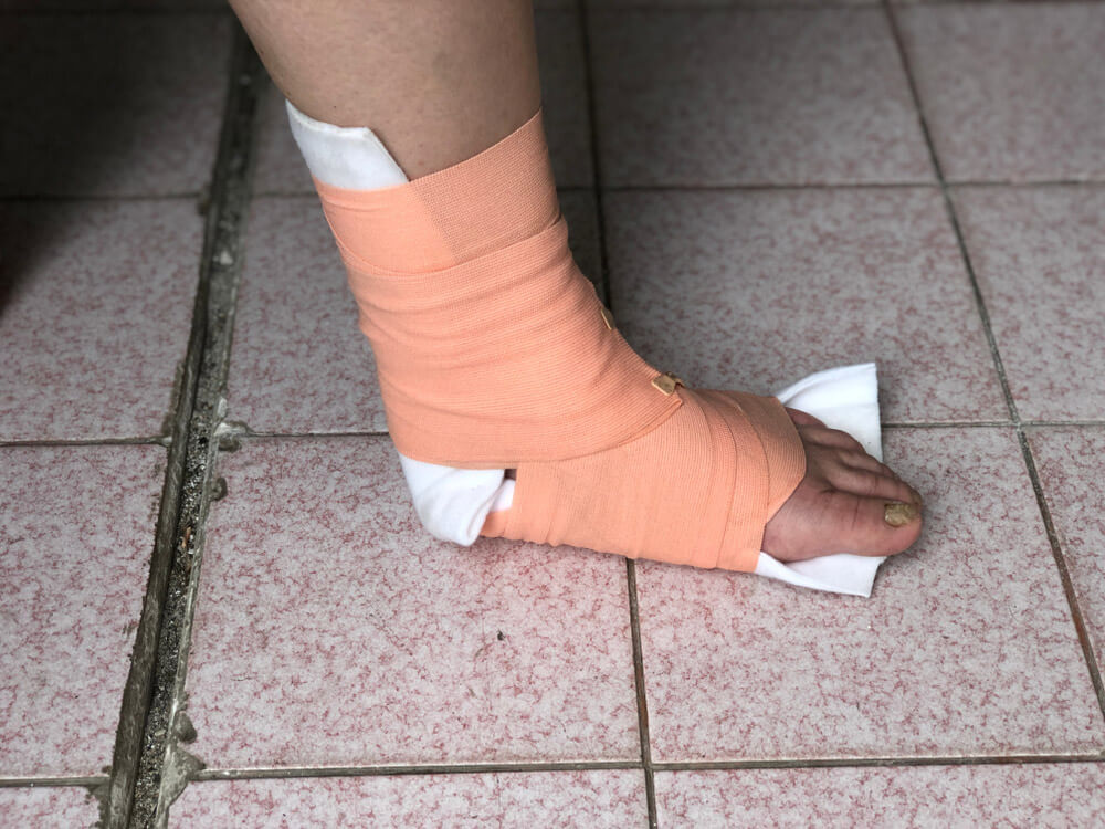 Tobillo y pie inmovilizado Consejos para prevenir lesiones de pie y tobillo