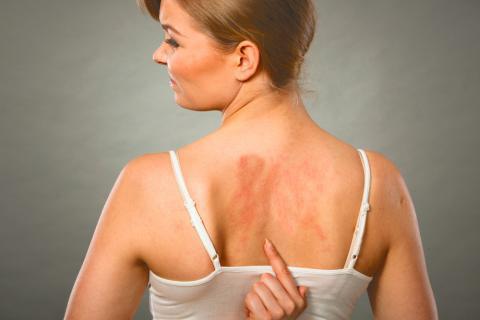Alergias al sol Tipos de alergias ¿Qué le ocurre al cuerpo?.