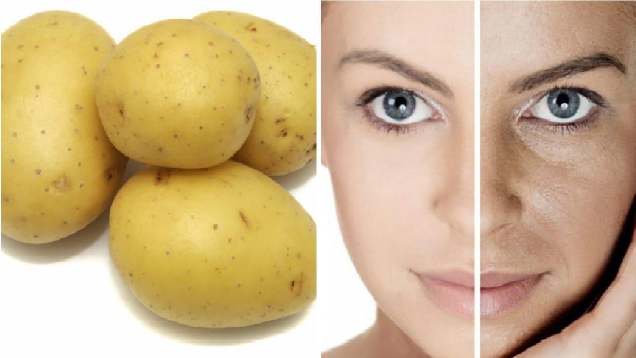 Patatas contra las manchas de la cara 3 Grandes remedios caseros para quitar las manchas de la cara