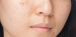 Remedios caseros para las manchas de la cara