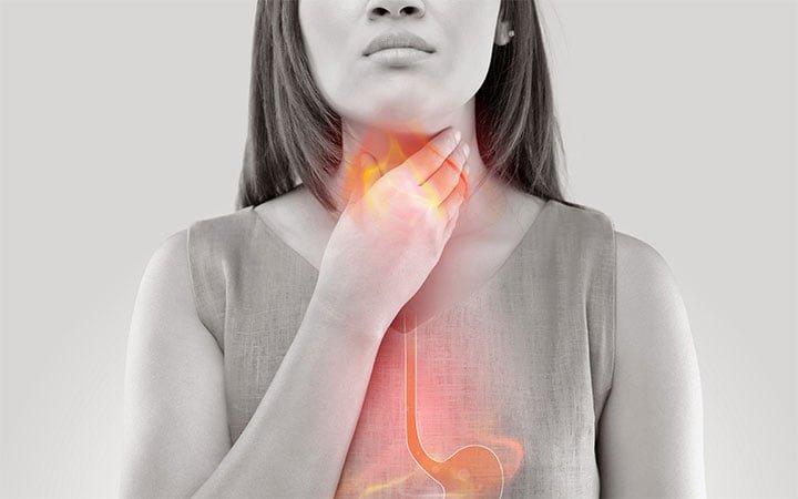 Qué es el Reflujo gastroesofágico y cómo evitarlo