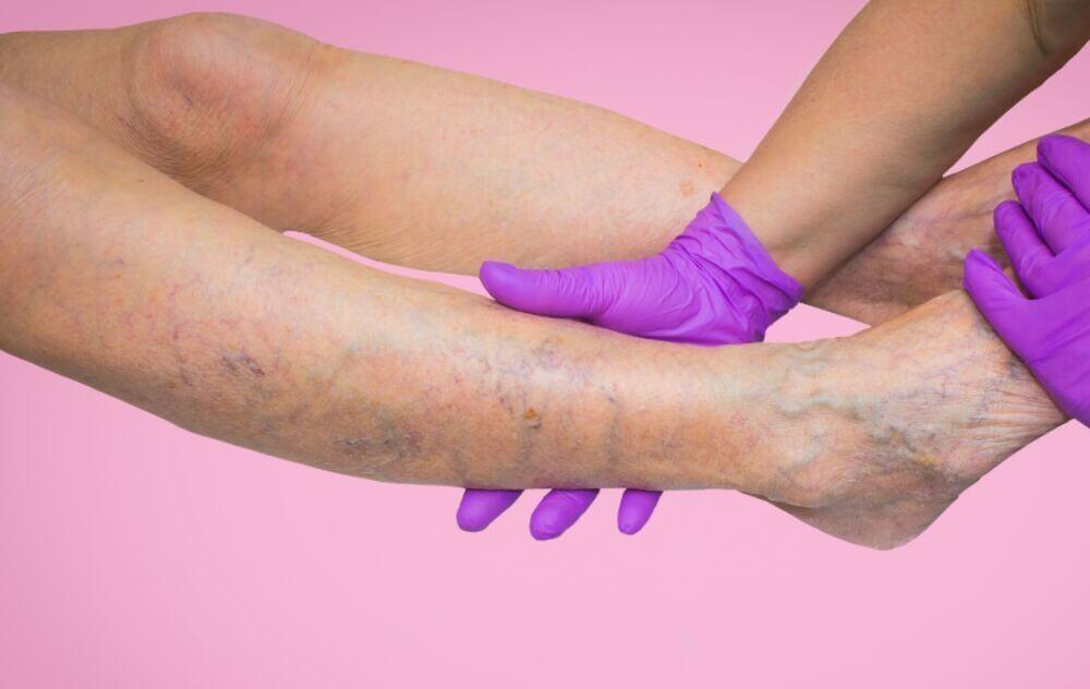 varices qué son sintomas tipos tratamientos ¿Qué son las varices? Tipos de varices, síntomas y tratamientos